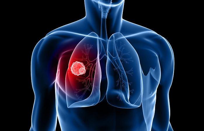Применение барсучьего жира. Показания. Лечение барсучьим жиром пневмонии, бронхита, ожогов.