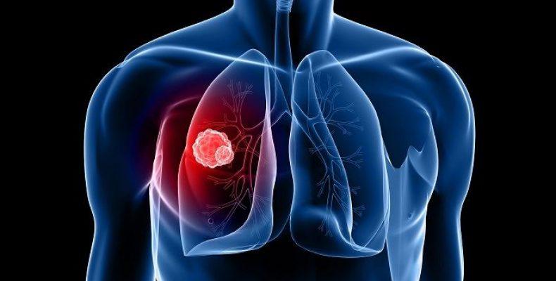 Как применять барсучий жир при онкологии легких: 2 полезных рецепта ⚕️